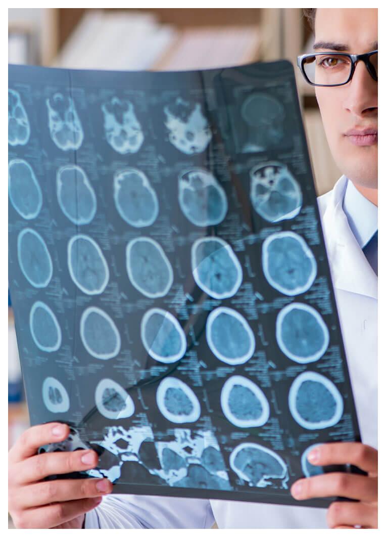check-up-neuromotorio